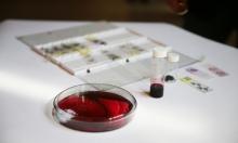 """العلماء ينجحون في إنتاج كميات كبيرة من """"الدم الصناعي"""""""