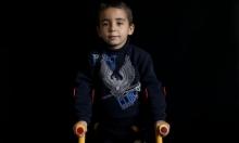 أطفال الحرب في سورية... آثار وندوب سوداء وذكريات مؤلمة