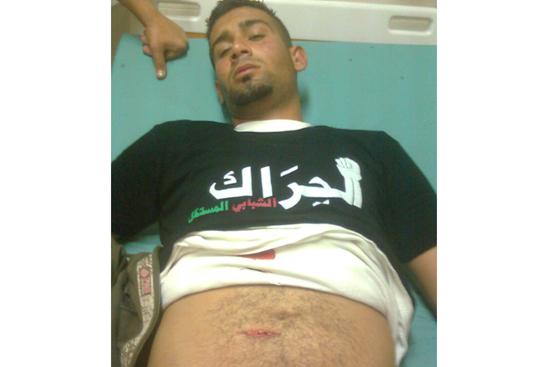 أمن السلطة الفلسطينية يعتدي على المعتصمين في قلقيلية بالسلاح الأبيض