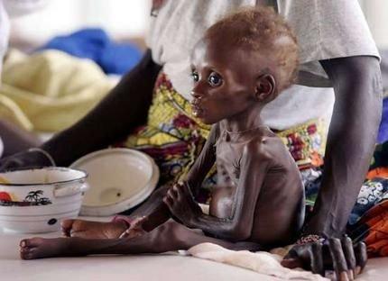 الأمم المتحدة تعلن جنوب الصومال منكوبة بالمجاعة