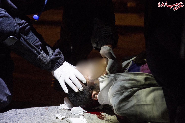 مواجهات في رهط: دهس فتى قاصر بمركبة شرطة (فيديو)