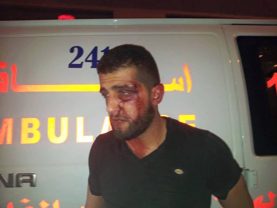 المطالبة بالتحقيق باعتداء الأمن الوقائي على أسير محرر
