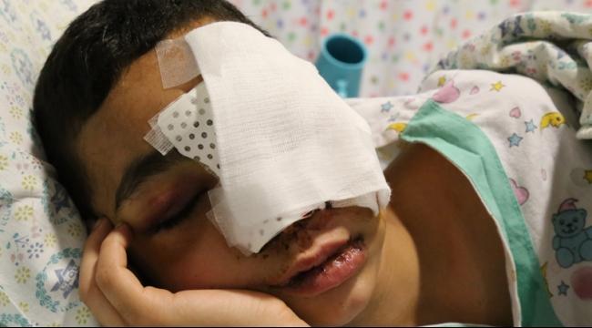 تقرير: الطفل المقدسي العامودي ضحية جديدة للرصاص الإسفنجي