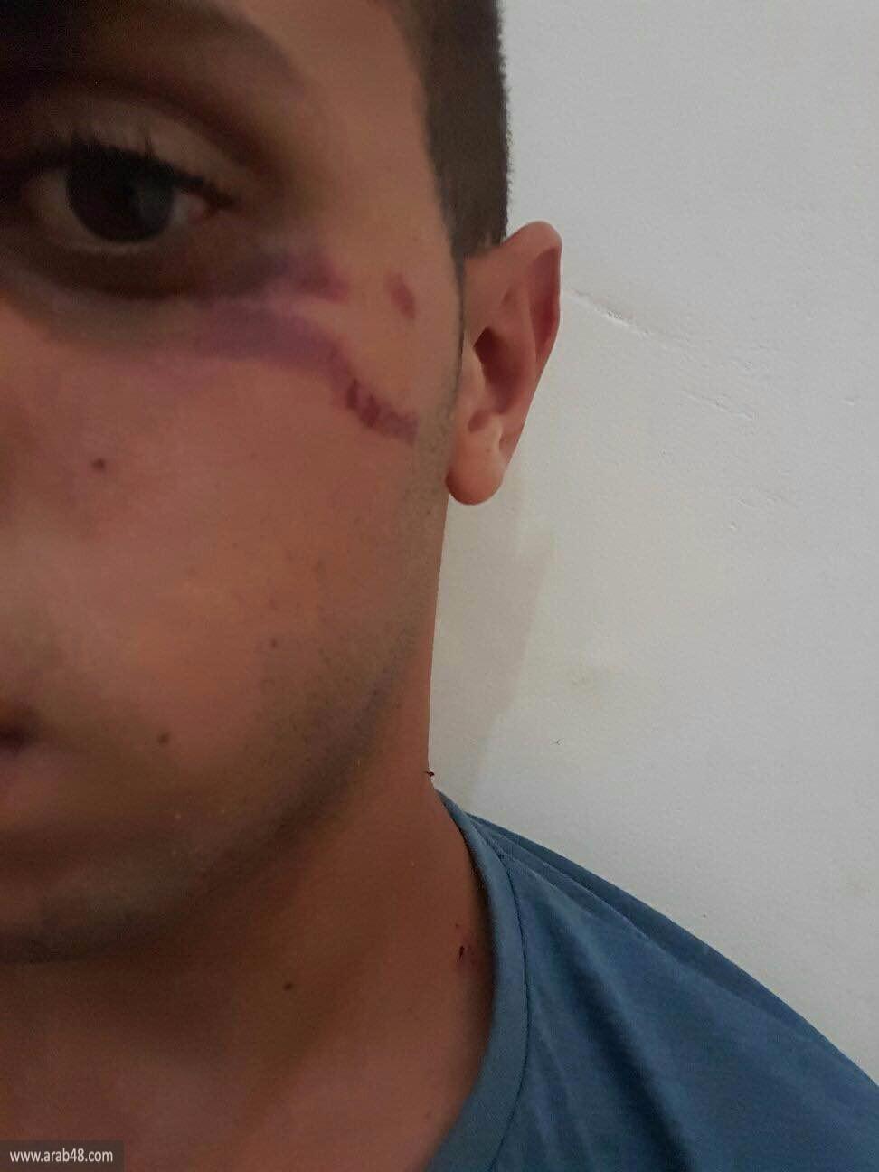 """اعتداء عنصري على شاب من أم الفحم في """"شفاييم"""""""