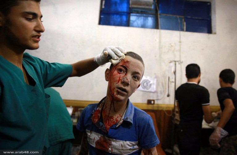 سورية: مقتل 50 في هجوم صاروخي على دوما
