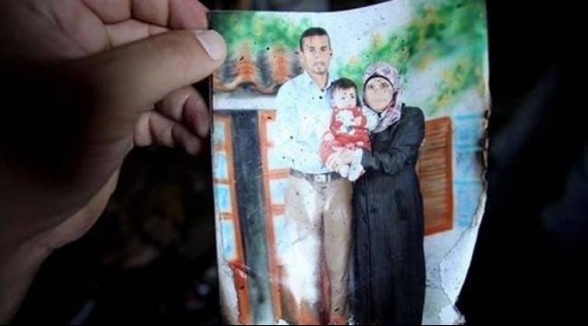 والد ريهام دوابشة يؤكد أن حالتها لا زالت خطيرة