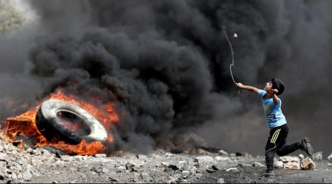إصابة شاب في طولكرم بمواجهات مع الاحتلال
