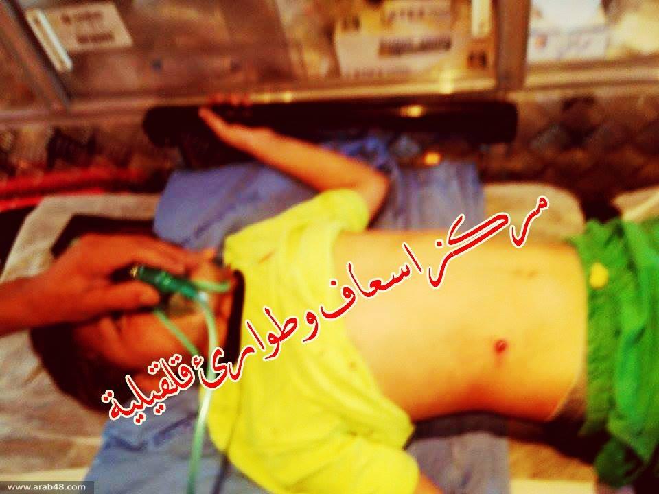 نابلس: مستوطن يطلق النار على طفل
