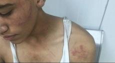 كفر مندا: اعتقالات واعتداء وحشي على متظاهرين