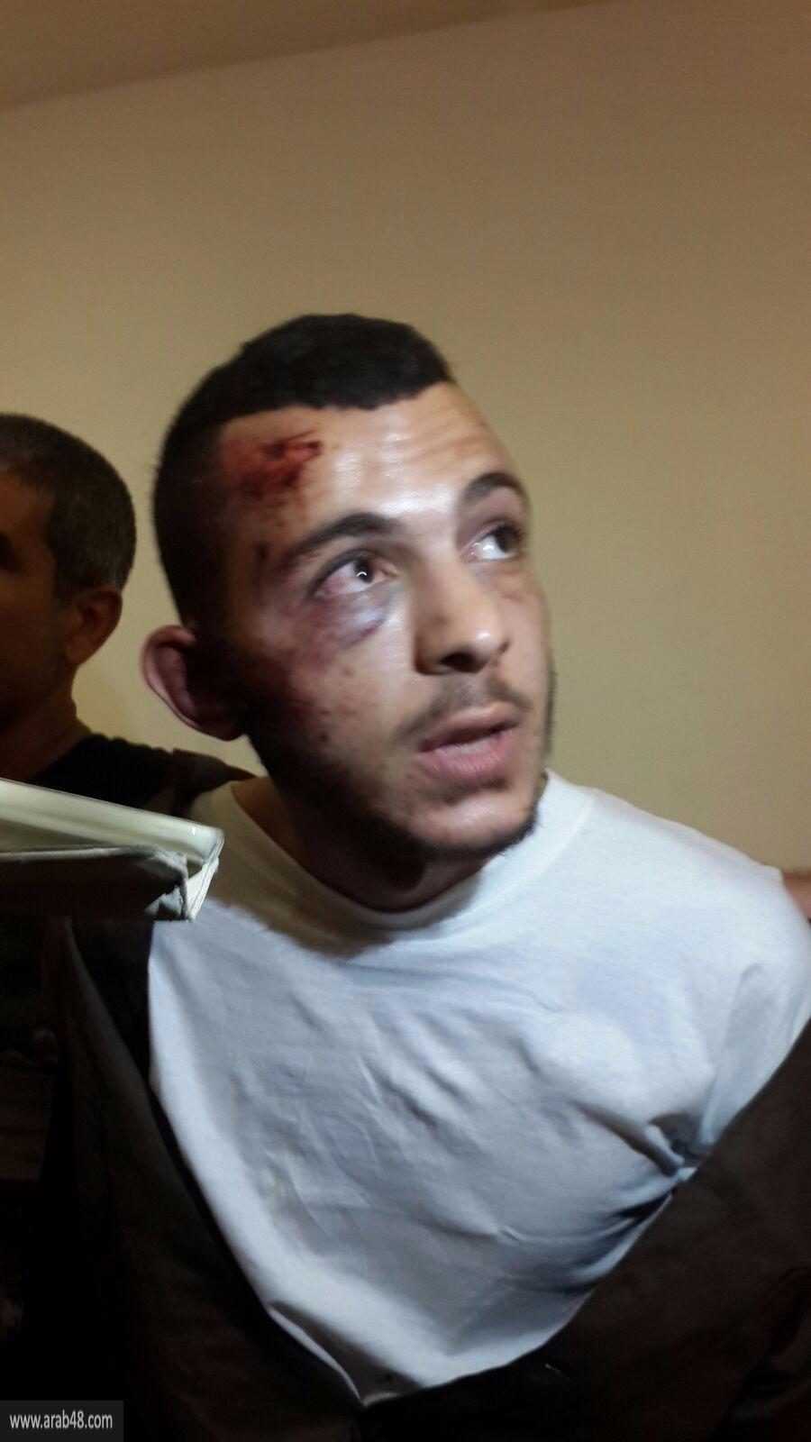 زيود أثناء تمديد اعتقاله: حادث طرق وليست عملية طعن