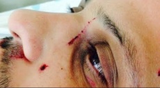 إرهابيون يهود يعتدون على شاب من إبطن في حيفا