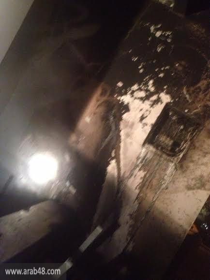 مجد الكروم: إصابة في حريق بمنزل