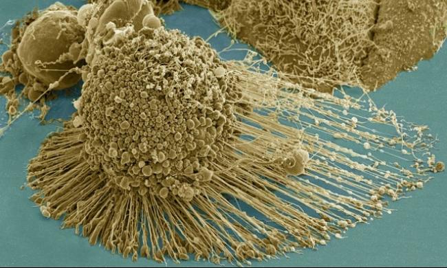 كندا: علماء يتوصلون للبروتين المسؤول عن عدّة سرطانات في الجسم