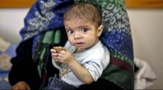 غزّة: الفقر والحصار وسوء التغذية يلاحقون الأطفال