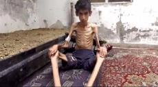النظام السوري يؤخر مساعدات للجوعى بمضايا المحاصرة