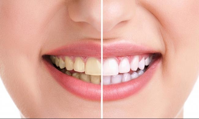 لتبييض وتلميع الأسنان خلال أيام.. اصنع المعجون بنفسك