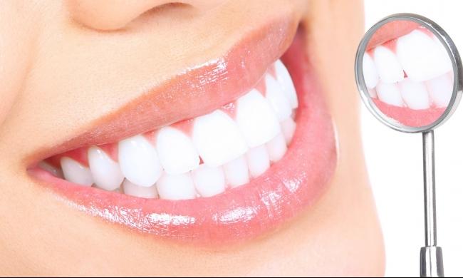 بكتيريا تمنع تسوس الأسنان