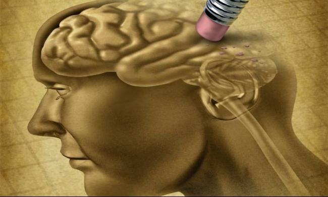 دراسة: أمراض اللثة تفاقم التدهور الإدراكي لمرضى الزهايمر
