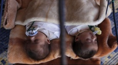 الرضاعة الطبيعية تقلل إصابة المواليد بمرض الكبد الدهني