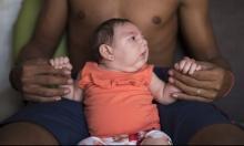 كولومبيا: حالات تشوه لمولودين مرتبطة بزيكا