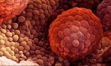 دراسة: الجنس يحمي الرجال من سرطان البروستاتا