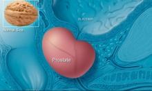 نتائج مبشرة لعلاج سرطان البروستاتا