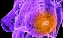 اكتشاف خارطة الجينات المسببة لسرطان الثدي