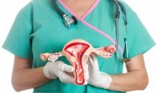 دراسة: الربط البوقي يمنع الإصابة بسرطان المبيض
