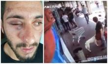 أبو القيعان: أفراد الشرطة اعتدوا علي وشتموني