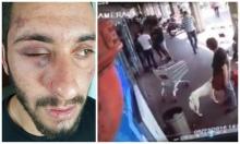 التحقيق مع المعتدين على أبو القيعان بارتكاب جناية