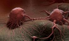 دواء جديد يثبت فاعليته فى مكافحة سرطان المثانة