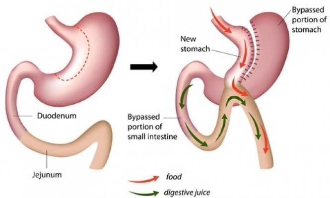 النتائج الإيجابية لجراحة إنقاص الوزن... مستقبلية