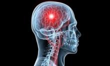 لا علاقة بين الصدفية والجلطات الدماغية
