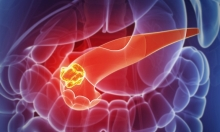نتائج مبشرة في علاج سرطان البنكرياس