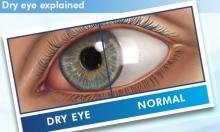 قطرات جديدة لعلاج جفاف العين