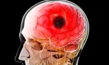10 قواعد لتجنب السكتة الدماغية