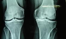 نتائج مبشرة لعلاج التهاب المفاصل الروماتويدي