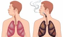 التخلص من سموم الرئتين بعد الإقلاع عن التدخين