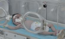 ولادة الأطفال مبكرًا تعرضهم لخطر ضغط الدم المرتفع