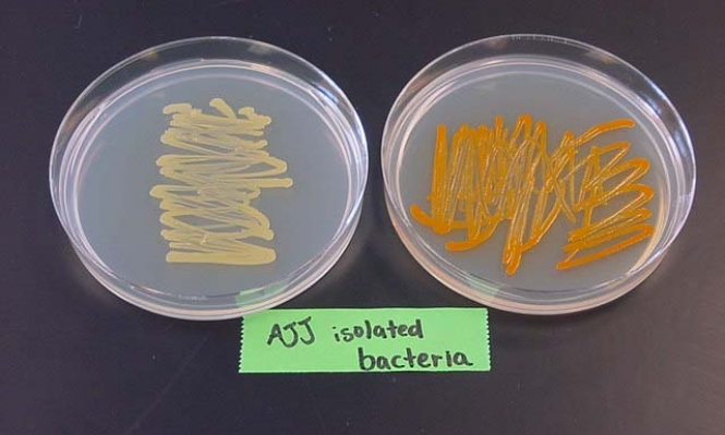 اسكتلندا: تطوير تقنية محوسبة لردع تفشي البكتيريا
