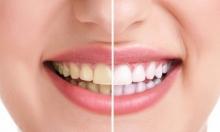 تجنب هذه الأطعمة لتحظى بأسنان بيضاء