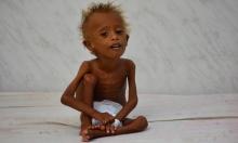الجوع يضع اليمن على شفير هاوية