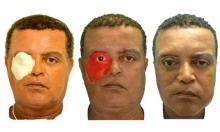 هاتف يعيد لرجل جزء مفقود من الوجه