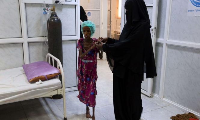مآس باليمن: حرب وأمراض وجوع ودفن بلا أكفان
