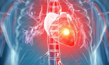 الناجون من السرطان أكثر عرضة للإصابة بالنوبات القلبية