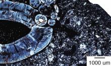 في حدث نادر... اكتشاف ورم خبيث عمره 255 مليون عام