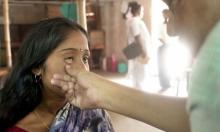 الأنيميا توفر حماية طبيعية للأطفال ضد الملاريا
