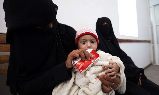 اليمن: 1400 طفل قتلوا في النزاع منذ بدايته