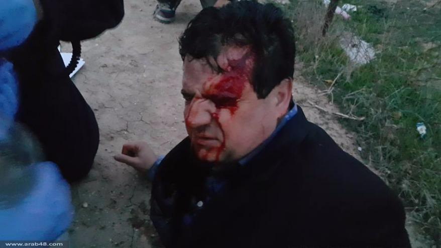 شهيد وجرحى بأم الحيران برصاص الشرطة