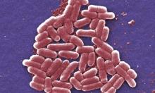 اكتشاف بكتيريا مقاومة للمضادات الحيوية